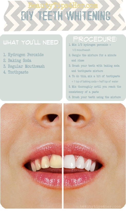Homemade Teeth Whitening - AllDayChic