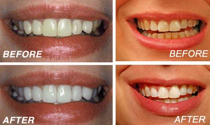 before-after-teeth-whitening
