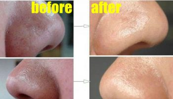 How to Easily Remove Deep Blackheads