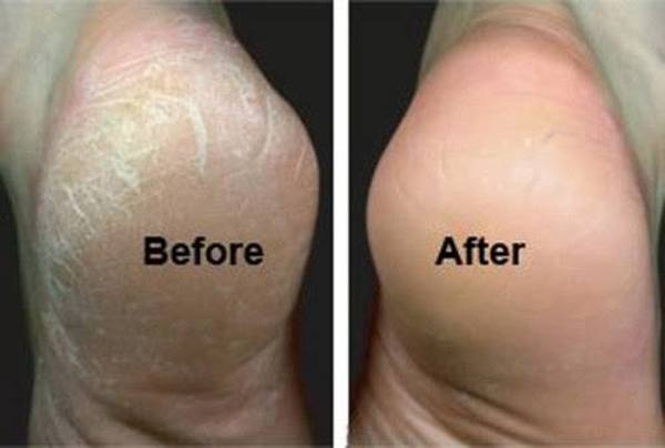 Home Remedies For Cracked Heels That You Need To Try Out