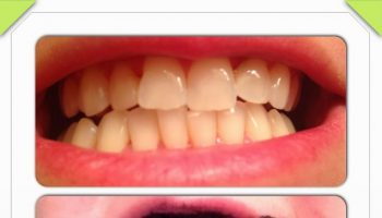 How to Naturally Whiten Your Teeth – DIY