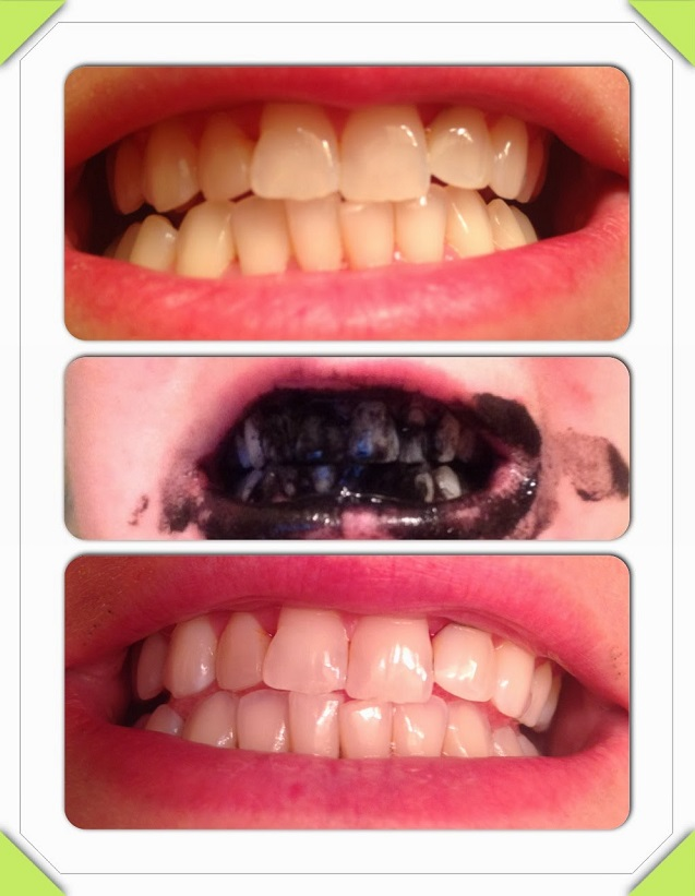 How To Naturally Whiten Teeth With Coconut Oil