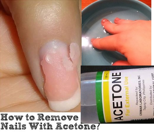 how to easily remove acrylic nails with acetone alldaychic. Black Bedroom Furniture Sets. Home Design Ideas