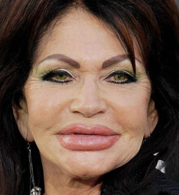 24 Plastic Surgery Disasters (11)