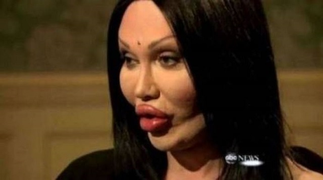 24 Plastic Surgery Disasters (12)
