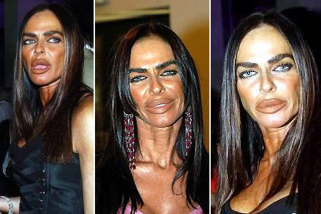 24 Plastic Surgery Disasters (14)