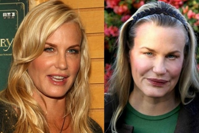 24 Plastic Surgery Disasters (17)