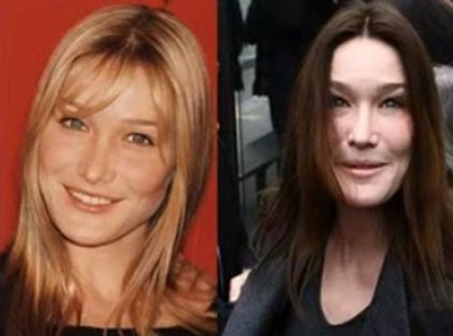 24 Plastic Surgery Disasters (22)