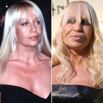 24 Plastic Surgery Disasters (4)