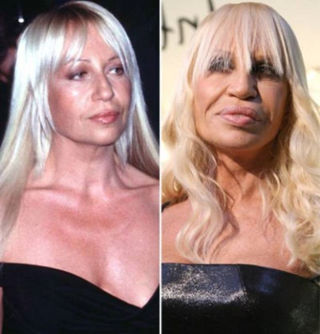 Plastic Surgery Disasters Alldaychic