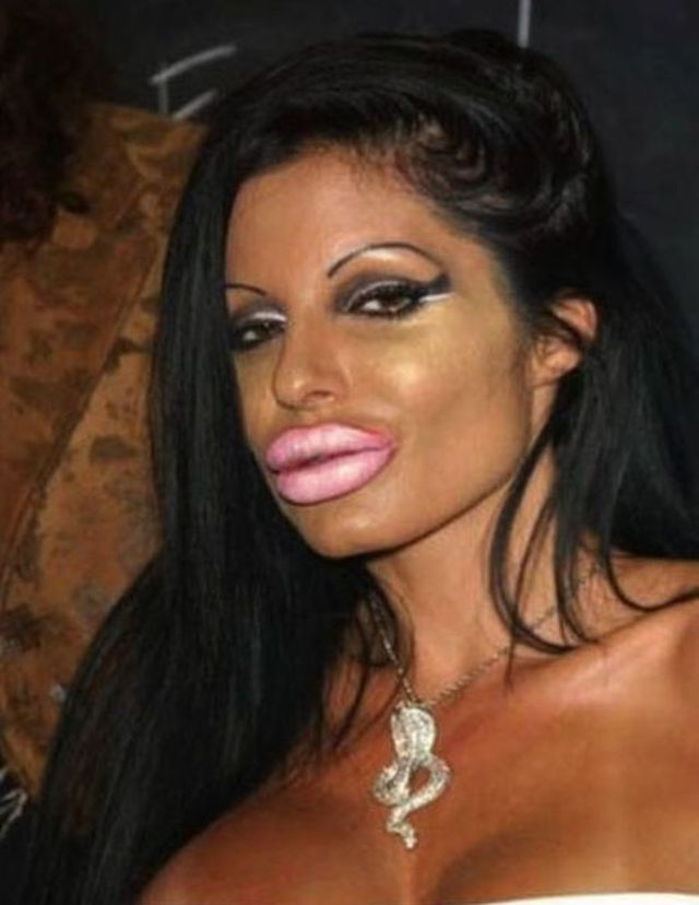 24 Plastic Surgery Disasters (7)