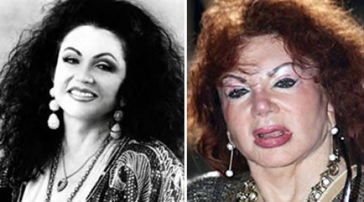24 Plastic Surgery Disasters (8)