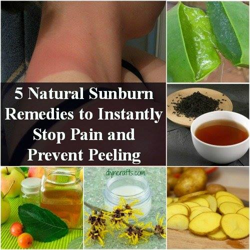 Natural Sunburn Pain Remedies and Peeling Prevention