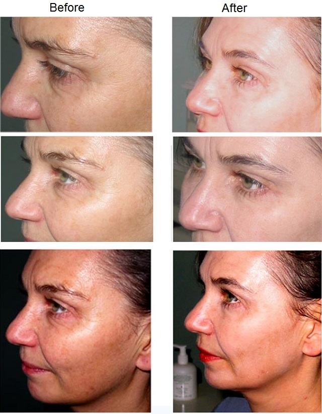Myths About Facelifting Uncovered