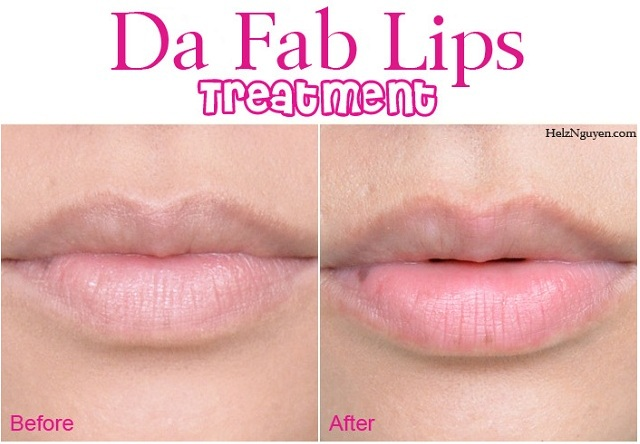 Treatment for Healthier Lips