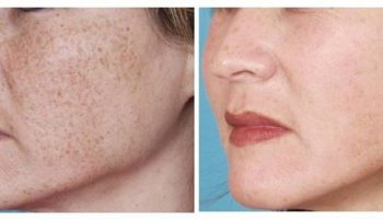 How To Naturally Lighten Freckles