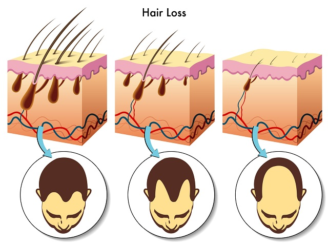 How can i prevent hair fall