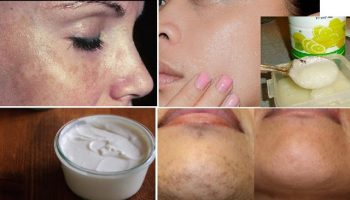 Awesome Home Remedies For Black Spots