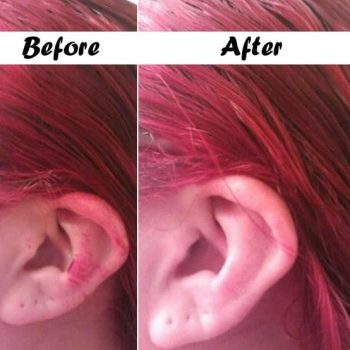 Remove-hair-dye-stains-from-your-face-and-hands 1