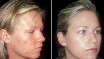 Tips On How to Hide Acne On Face