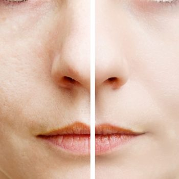 Woman with spotty skin with deep pores  and healed soft skin
