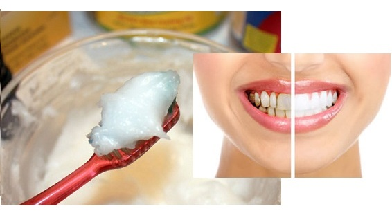 Homemade Toothpaste – DIY
