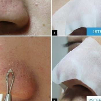 How To Remove Blackheads And Whiteheads With Skinmiso Kit (2)