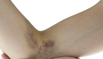 How To Get Rid Of Bruises Fast And Easy (2)