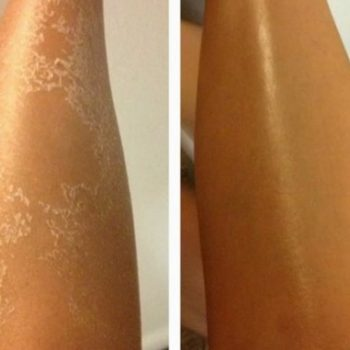 Natural Home Remedies For Peeling Skin
