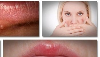 how-to-treat-herpes-get-rid-of-herpes-can