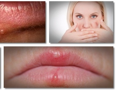 How To Get Rid Of Herpes - AllDayChic