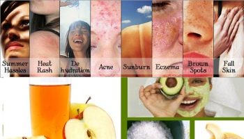 Natural Home Remedies For Summer Skin Problems