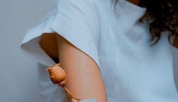 arm-fat-procedure-1
